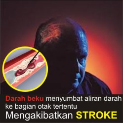 stroke kronis