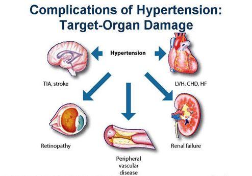 Bahaya Hipertensi