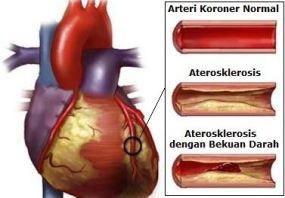 Penyakit Aterosklerosis