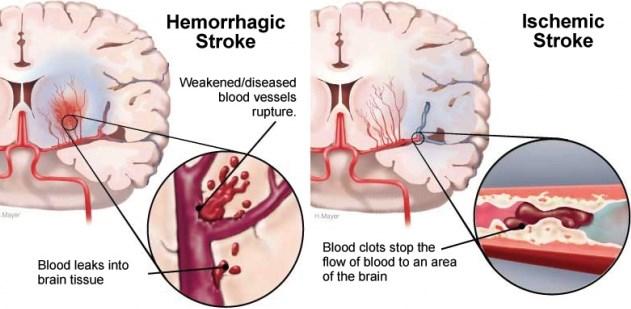 penyakit stroke iskemik