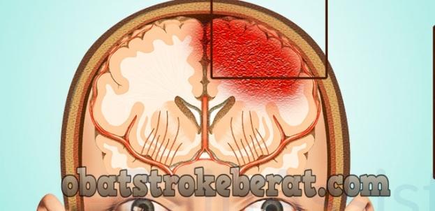 pembuluh darah di otak